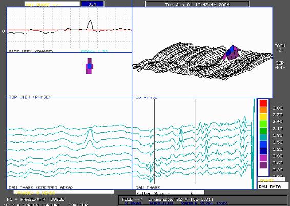 25% pit waveform
